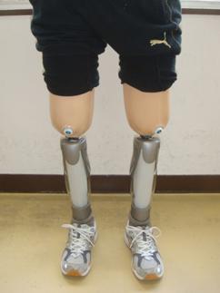 大腿切断と下腿切断の違い