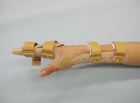 手背屈装具