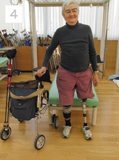 大腿切断者の義足装着